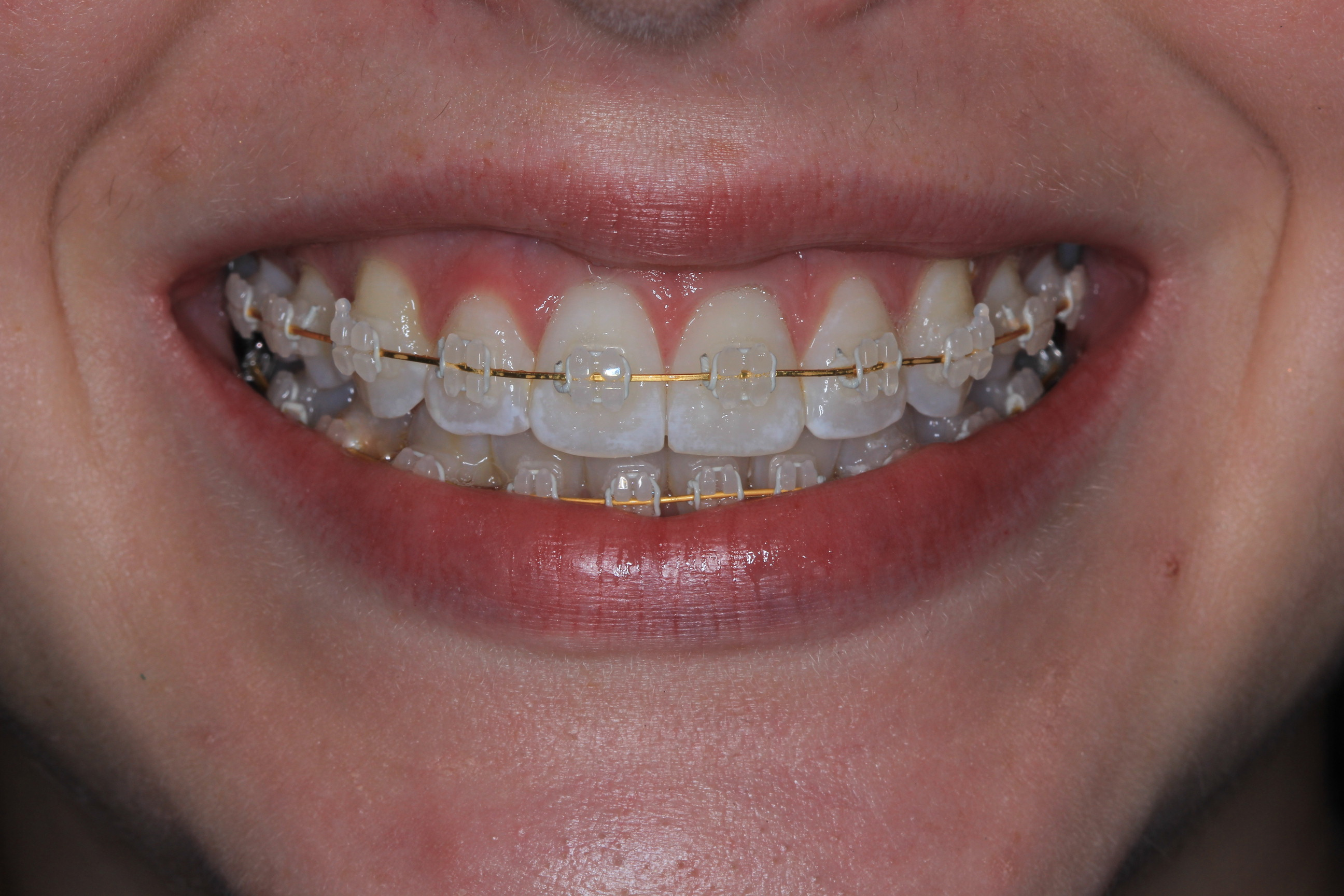 Ceramic Braces With White Wire | Orthodontist In Mckinney Tx 3m Clarity Clear Ceramic Braces